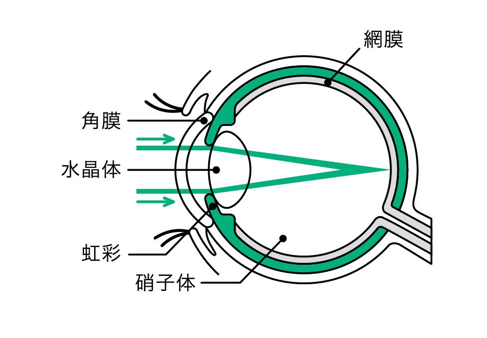 焦点眼内レンズ